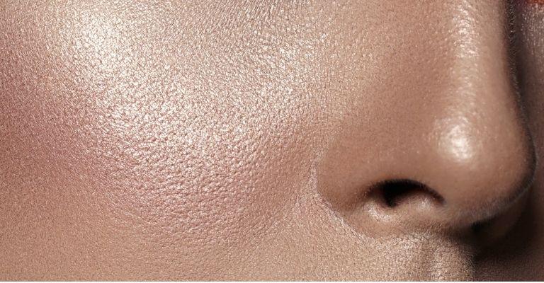 causas-acne-nariz