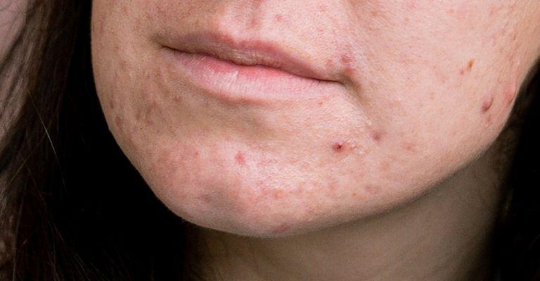 causas-acne-rostro-menton